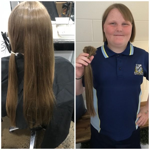 Emily-before-and-after
